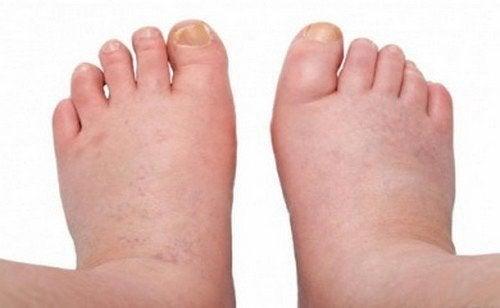 Piedi e caviglie gonfi: ecco come trattarli con rimedi naturali