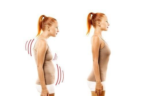 Ragazza con postura scorretta e postura corretta