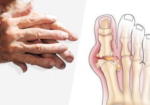 artrite alle mani e piedi