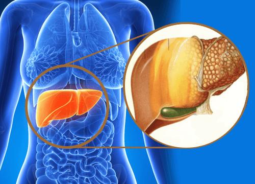 Cos'è il fegato grasso e come si cura