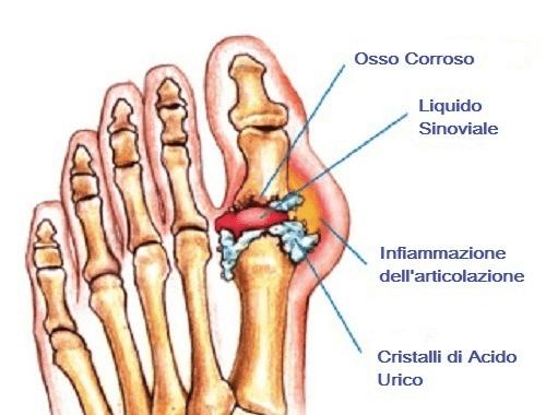 Ossa del piede e gotta