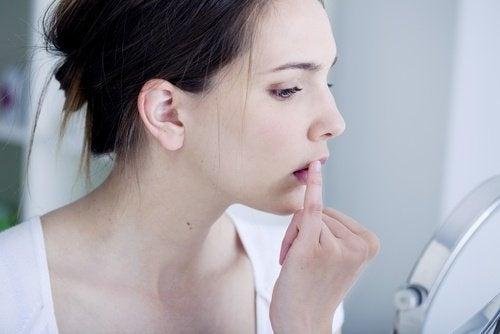 Cos'è l'herpes labiale