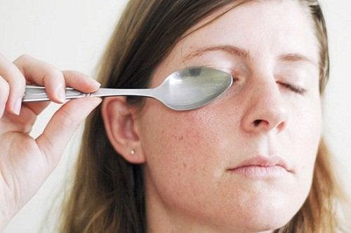 Cucchiaio occhiaie