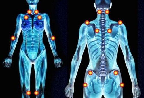 Minestra curativa per alleviare i sintomi della fibromialgia