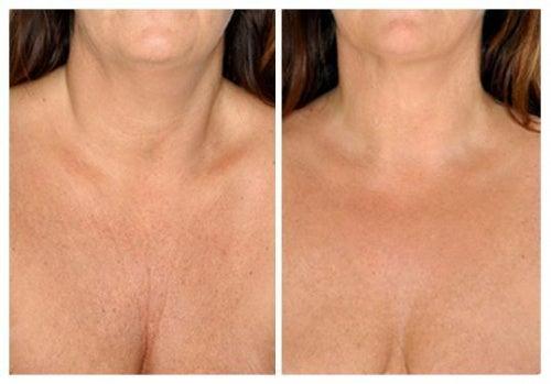 I migliori trattamenti naturali per la pelle del collo