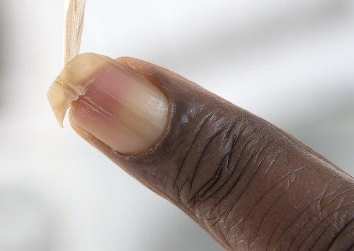Come irrobustire le unghie fragili in modo semplice