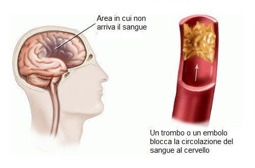 Infarto cerebrovascolare nelle donne: fattori di rischio