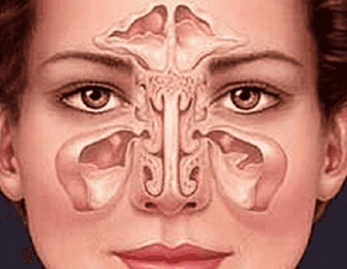 Come trattare la sinusite in modo naturale?