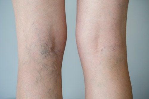 varicosi dietro al ginocchio