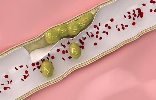 7 alimenti per pulire e rafforzare le arterie