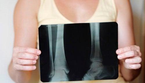 Come mantenere la densità ossea dopo la menopausa
