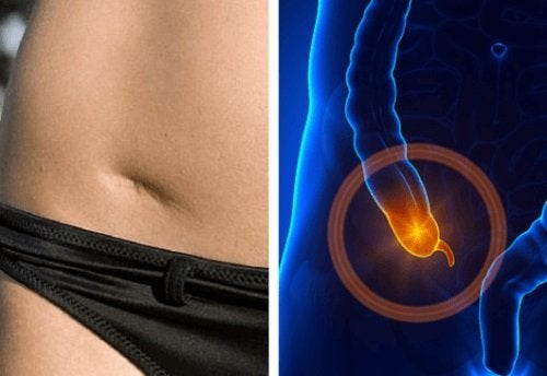 Appendicite: individuarne i sintomi per tempo