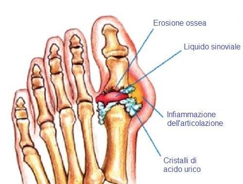 Eliminare i cristalli di acido urico nelle articolazioni