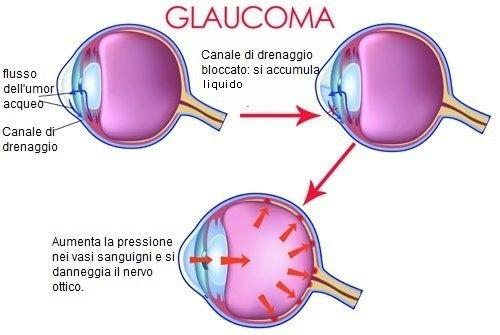 Schema glaucoma
