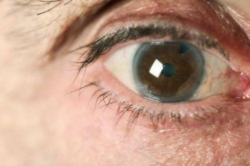 Prevenire il glaucoma naturalmente