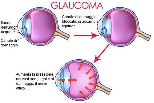 Il glaucoma: quando si verifica e come evitarlo