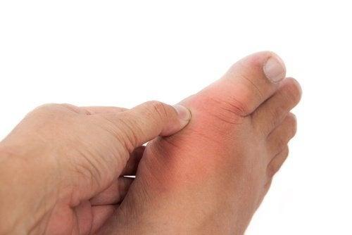 Gotta: sintomi, cure e rimedi naturali da conoscere