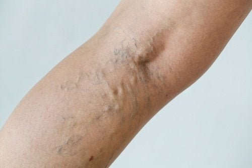 Le vene varicose