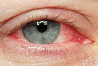 occhio irritato