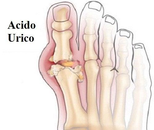 piedi con acido urico