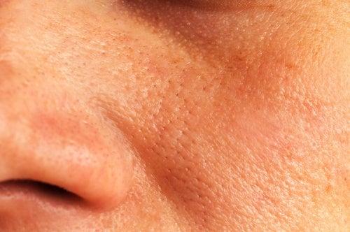 Ridurre i pori dilatati della pelle con 5 soluzioni naturali