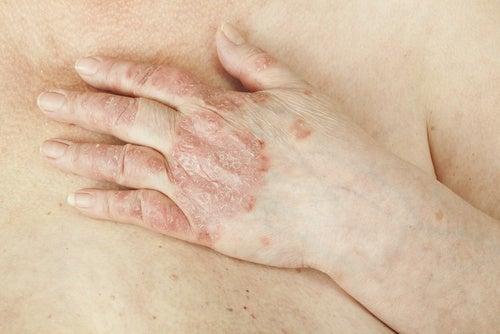 6 trucchi e rimedi naturali per alleviare la psoriasi