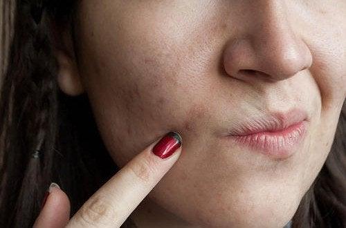Cura della pelle: 7 sbagli che vanno evitati