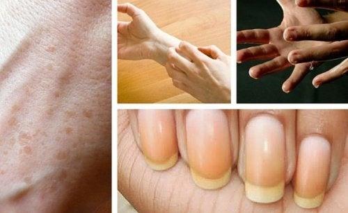 Le mani dicono molto sulla nostra salute