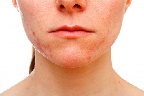 viso femminile con acne