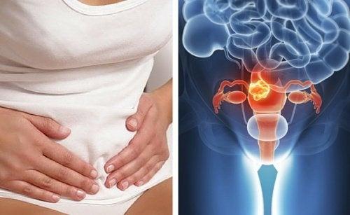 il dolore pelvico significa cancro cervicale
