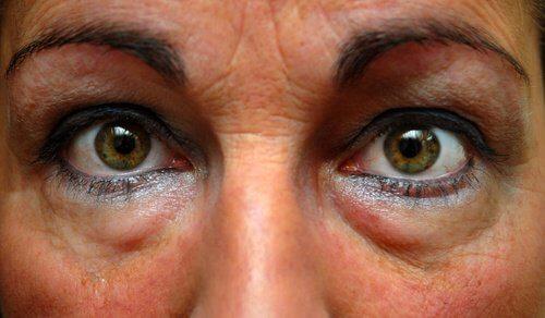Rimedio per sfiammare gli occhi gonfi