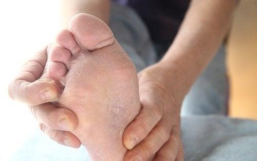 Curare il piede d'atleta in modo naturale: 6 rimedi