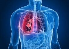 Cancro-polmoni