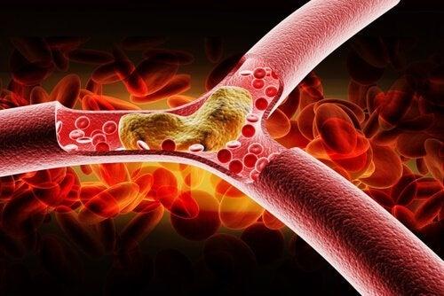 Colesterolo-cattivo