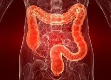 intestino colite ulcerosa