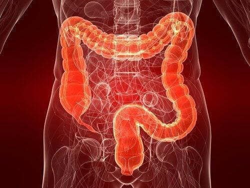 Colite ulcerosa: una malattia ancora poco conosciuta