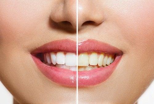 Denti più bianchi