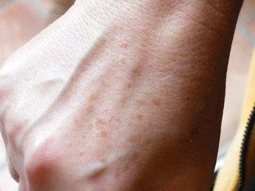 Macchie sulle mani: creme naturali per eliminarle