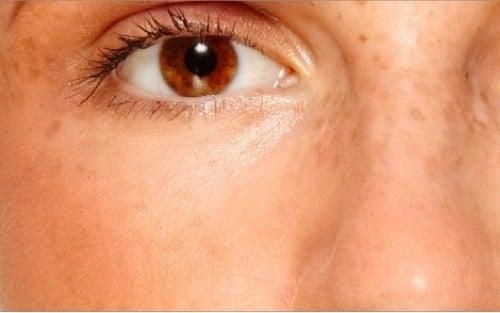 occhi segnati
