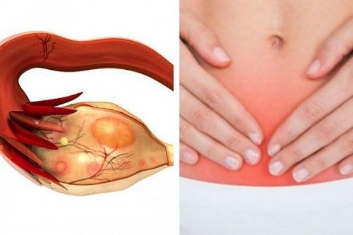 Tumore dell'ovaio: 7 segnali che rivelano il killer silenzioso
