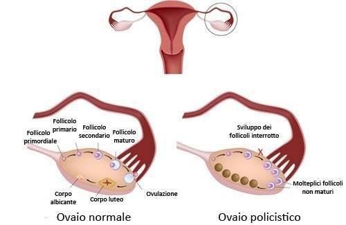 Anatomia delle ovaie