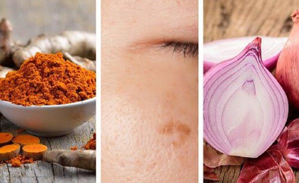 Macchie Di Unto Sulla Pelle macule cutanee: 6 rimedi naturali per eliminarle - vivere