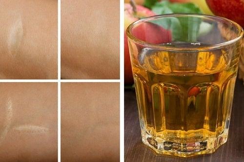 Tonico antiossidante per rughe, scottature e cicatrici