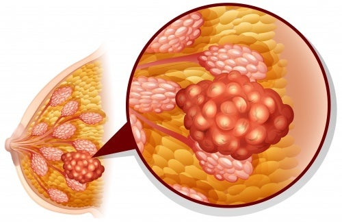 imprecisione screening mammografico