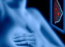 Mammografia-500x333