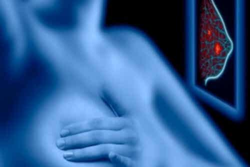 Screening Mammografico: i rischi superano i vantaggi?
