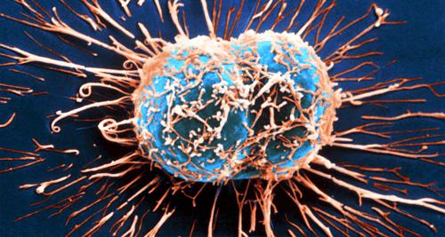 11 sintomi del cancro che molti ignorano