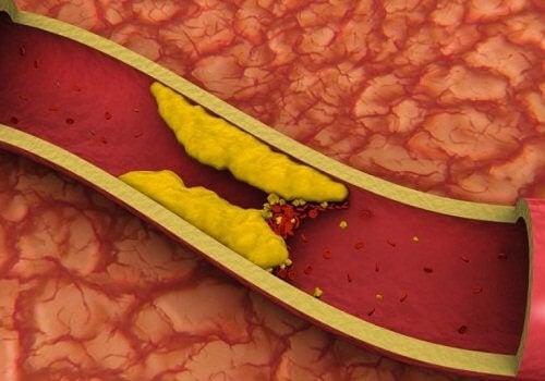 Il colesterolo nelle arterie