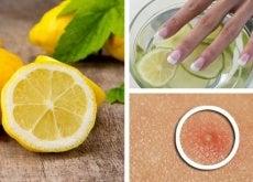 limone, mani e brufolo