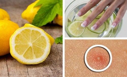6 modi per utilizzare il limone nelle routine di bellezza